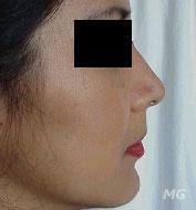 Inestetismi del naso rinoplastica sies societ for Interno naso